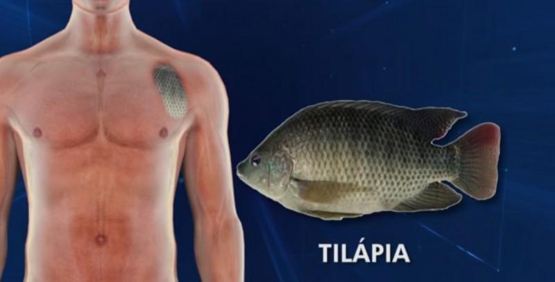 Resultado de imagem para QUEIMADURA COM PELE DE TILAPIA